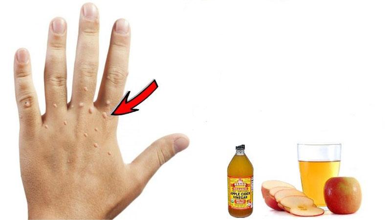درمان زگیل تناسلی با سرکه سیب